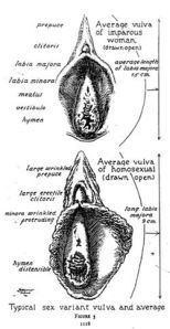 sexual-variance-in-vulva