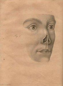 graefe-lost-nose