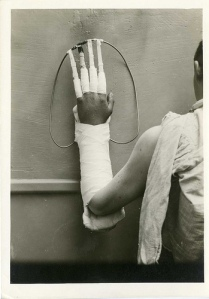 hand-splint