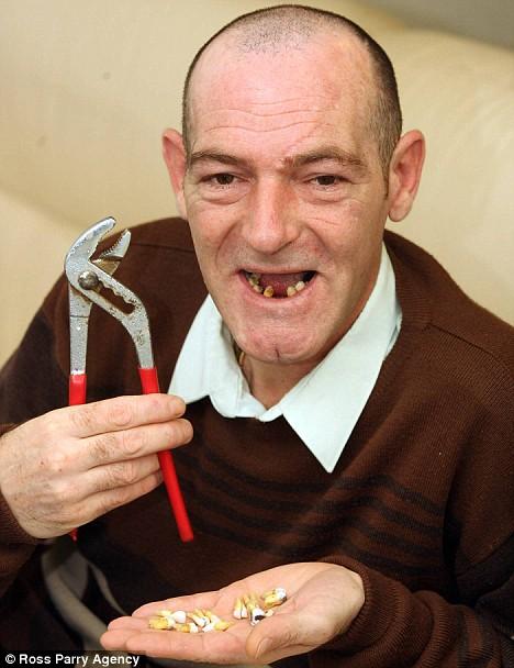 amateur dentist found here